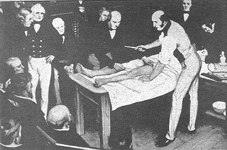 robert-liston-first-surgery-with-anaesthesia-in-england-university-of-mantioba-library